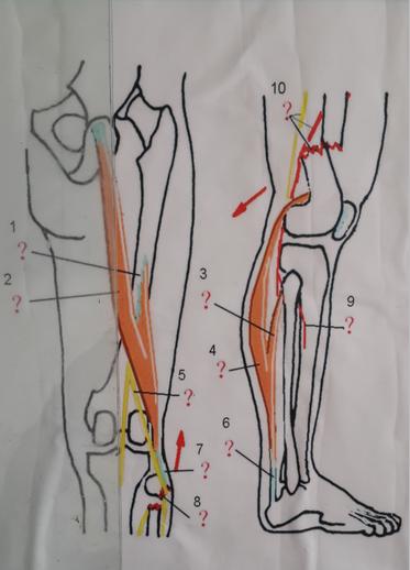 肌肉注射定位_主要骨骼肌及其功能应用 - 嘉应学院医学院解剖教研室